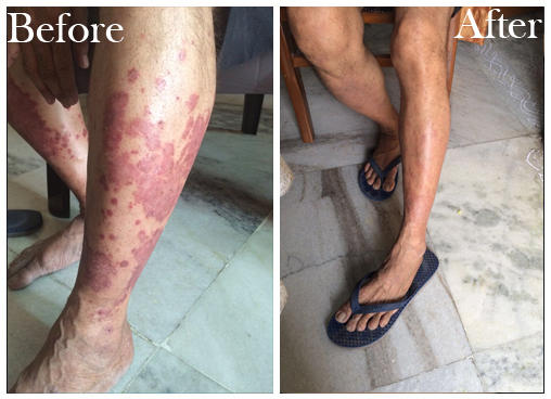 PSORIASIS Reviews - before-after-1